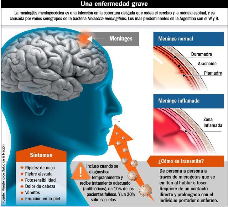 Infografía meningitis
