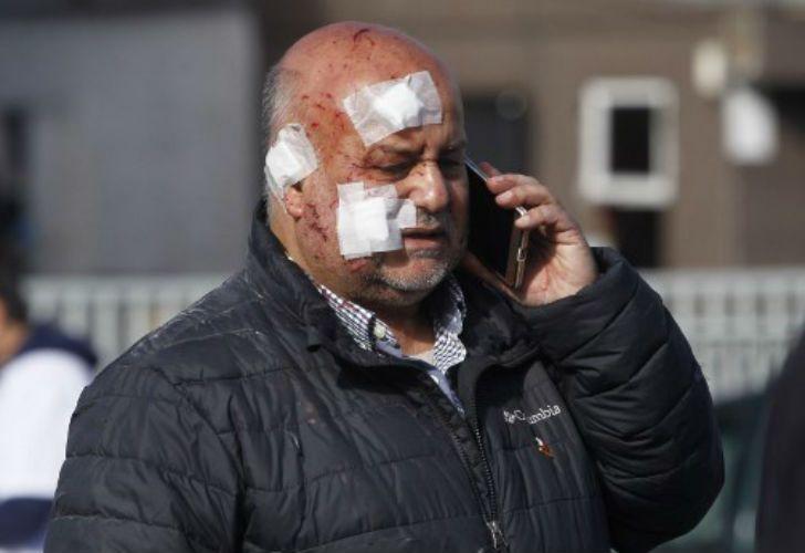 explosion clinica chilena 2 04212018