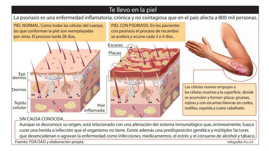 Infografía de la psoriasis.