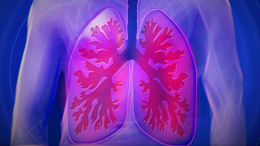Pulmones y EPOC.
