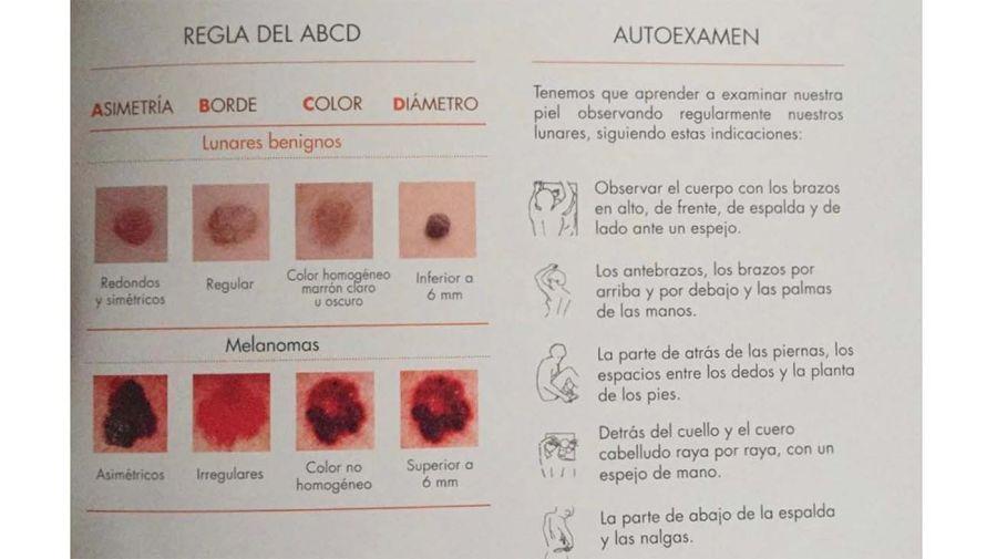 cancer-de-piel-20112018