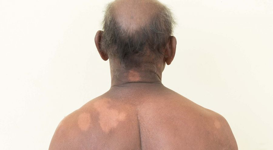 It is commonly manifested as a spot with no sensitivity to cold, heat and pain. PHOTO: CEDOC