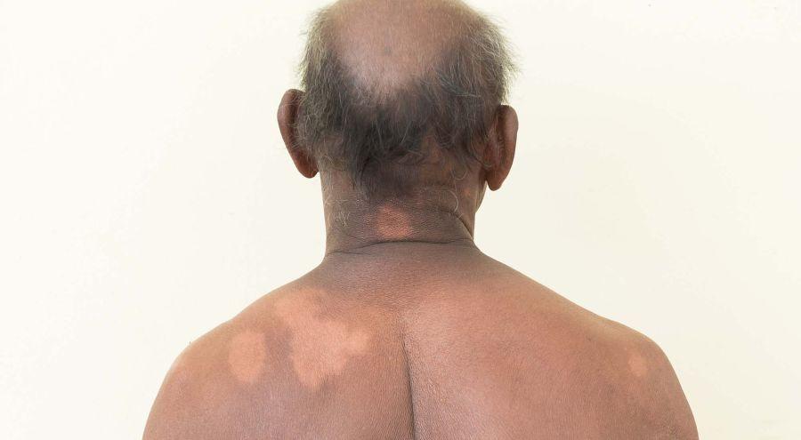 Se manifiesta comúnmente como una mancha sin sensibilidad al frío, al calor y al dolor. FOTO: CEDOC