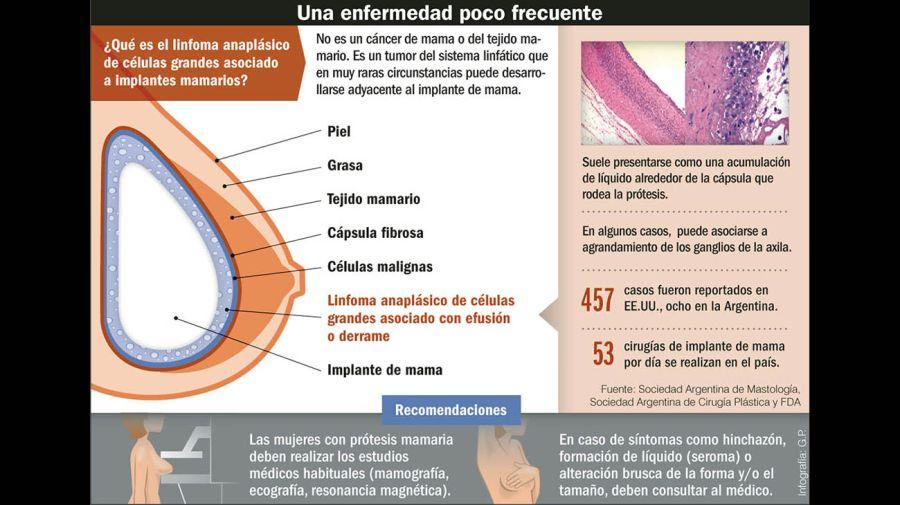 infos diario 06042019