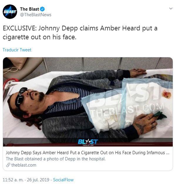 La prueba que presentó Johnny Depp contra su exesposa Amber Heard por haberlo quemado con un cigarrillo.