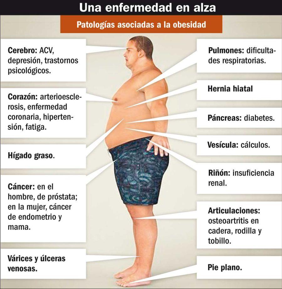 ciencia obesidad