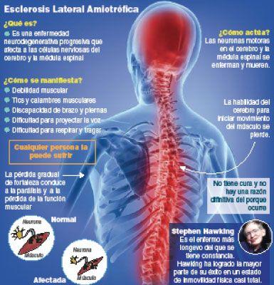 Esclereosis lateral amiotrófica