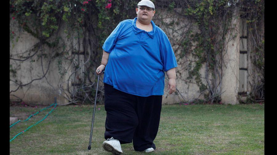 Hombre más gordo de México ya bajó 334 kilos