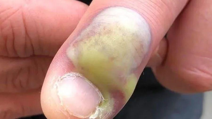 hombre dedo 29012020