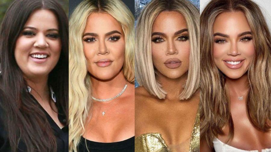 Khloé Kardashian - antes y después