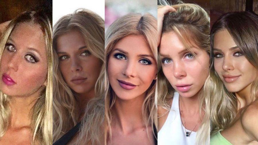 Romina Malaspina - antes y después
