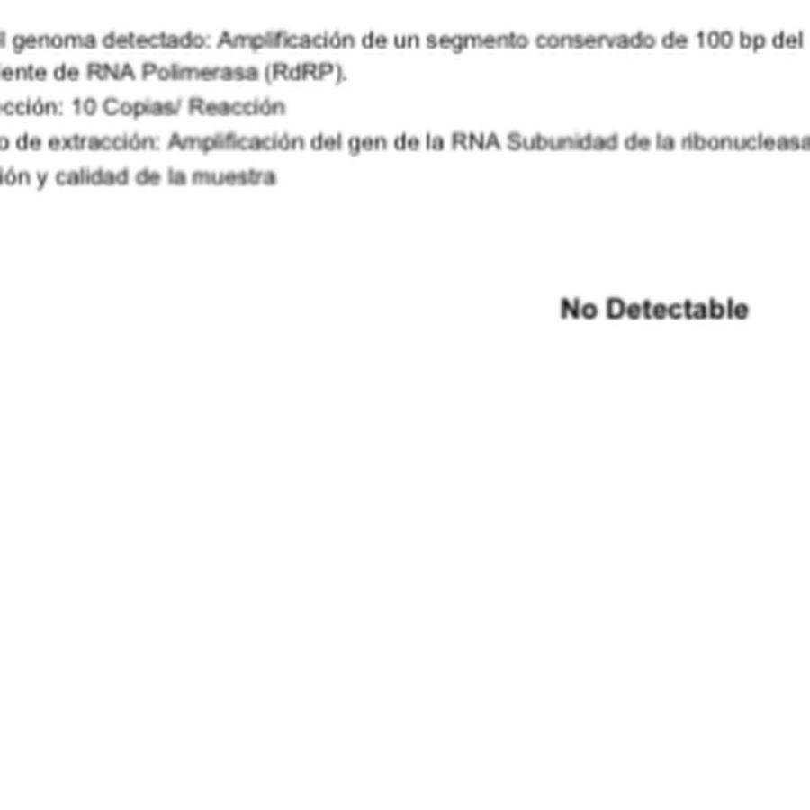 Resultado del test de Covid-19 de Mercedes Ninci