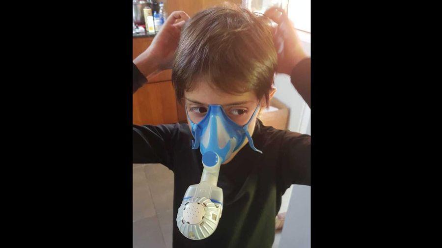 Fibrosis quística. 20200811