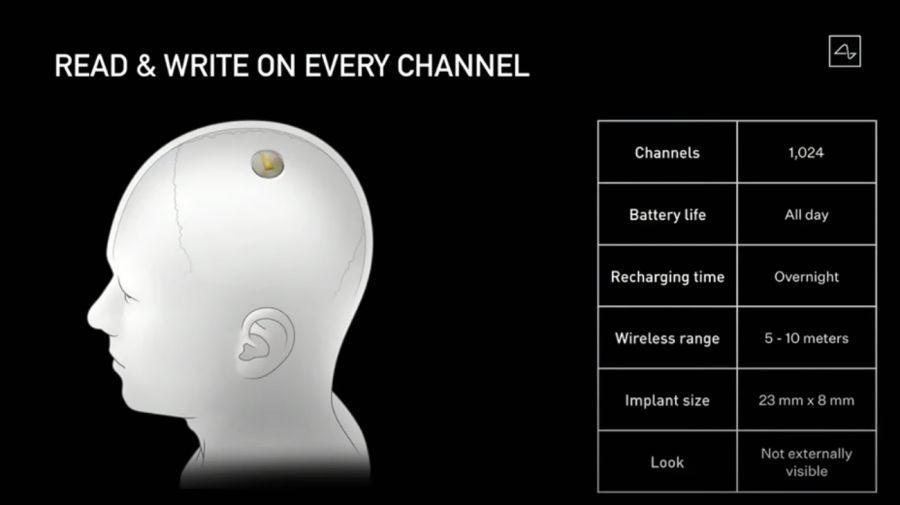 Neuralink, el nuevo proyecto de Elon Musk.