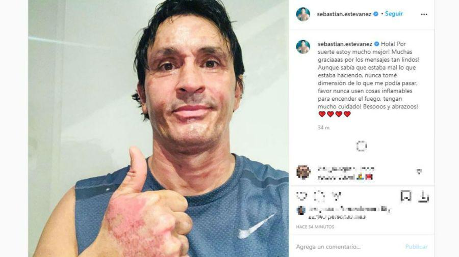 Sebastian Estevanez tras el accidente
