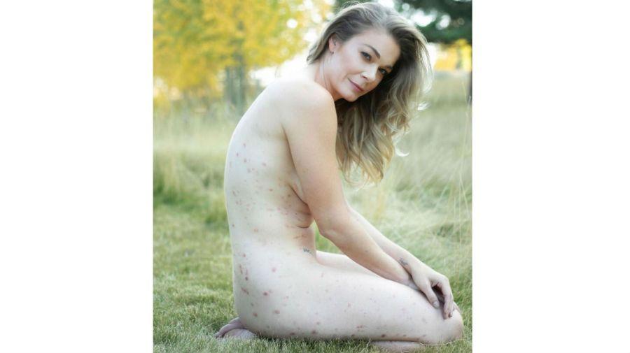 Leann Rimes psoriasis