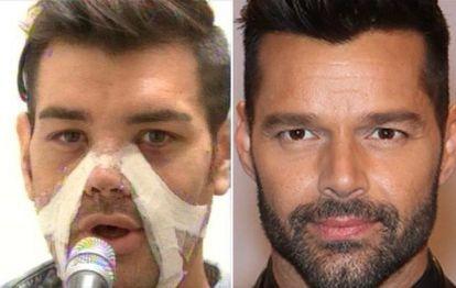 Conocé al fan de Ricky Martin que se operó 28 veces para parecerse a él
