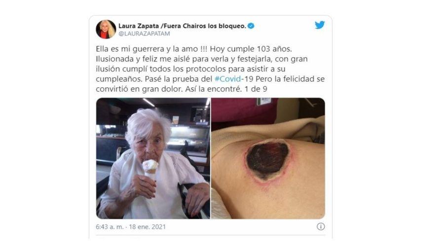 Heridas de Eva abuela de Thalia