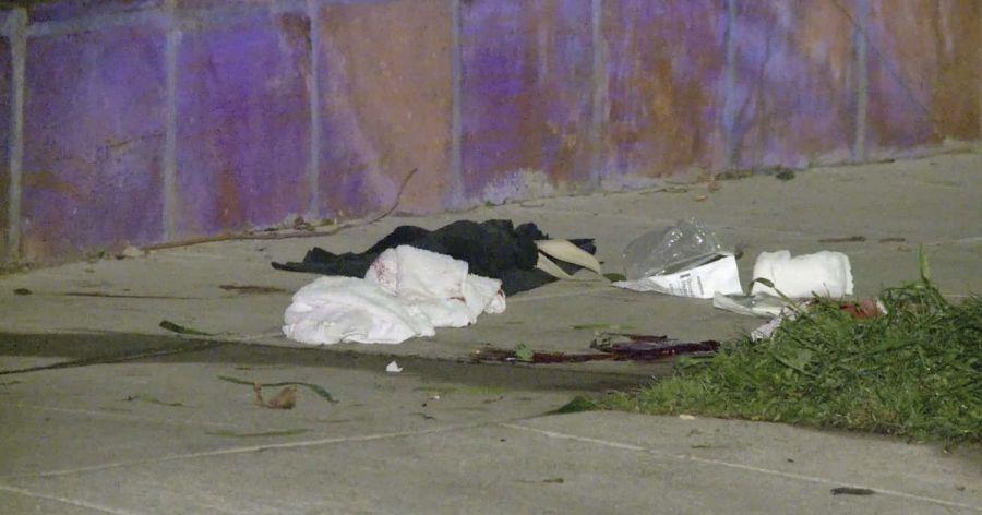 Disparos y secuestro: Lady Gaga sufre tras brutal ataque al paseador de sus perros, a quienes se llevaron