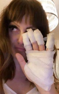 Connie Ansaldi sufrió un peligroso accidente doméstico