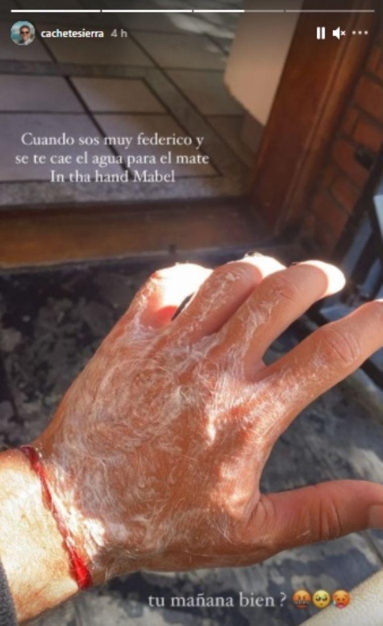 Cachete Sierra sufrió un accidente doméstico que puso en riesgo una de sus extremidades
