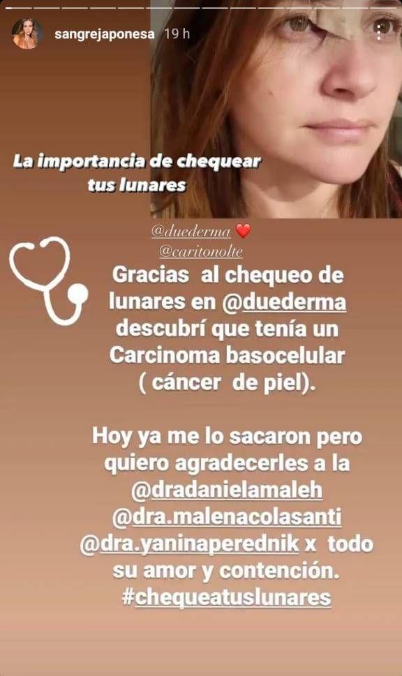 La China Suárez hizo un post sobre el cáncer de piel y generó la preocupación de sus fans
