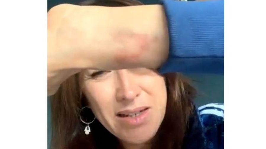 Valeria Archimo lesiones accidente