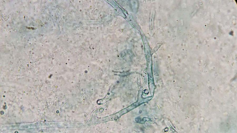 Mucormicosis pulmonar-20210527