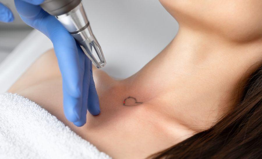 Tratamientos: Los importantes avances en tecnología láser permiten que hoy exista la posibilidad de borrar un tatuaje sin dejar cicatrices.