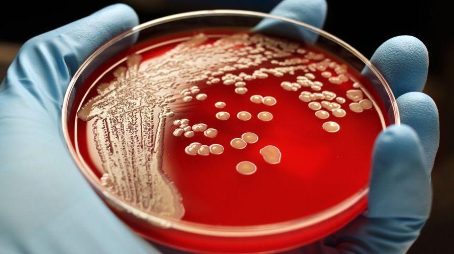 Superbacterias Turistas