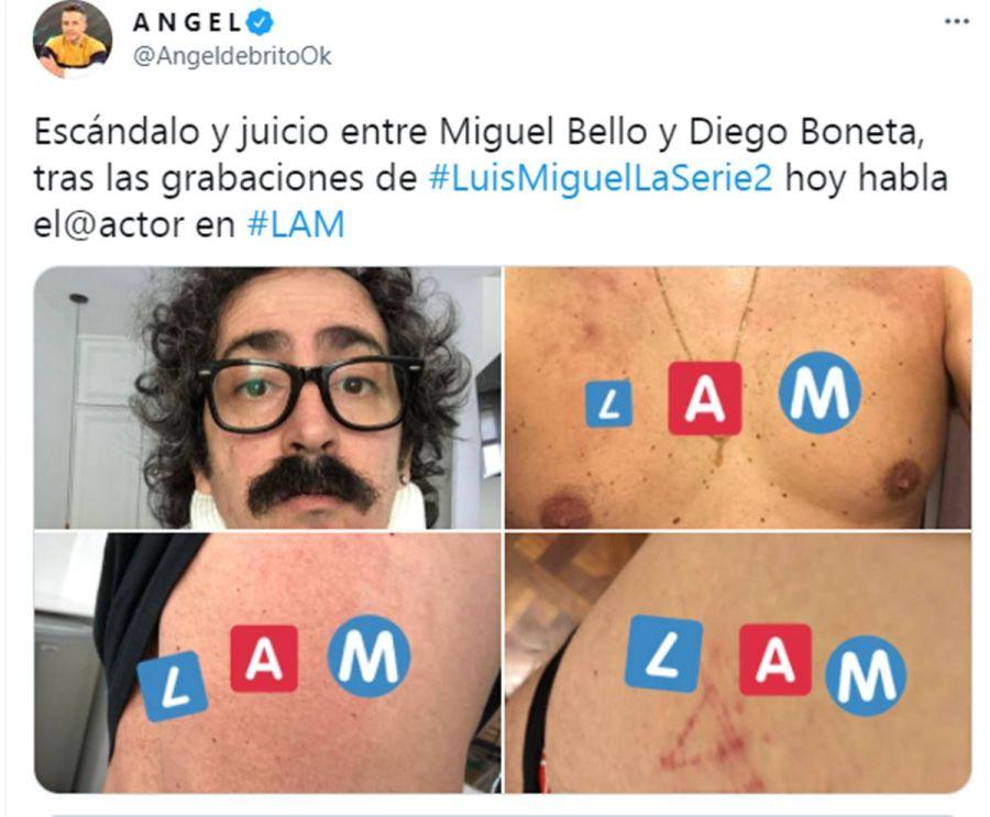 Diego Boneta fue acusado por un compañero de elenco de haberlo lastimado