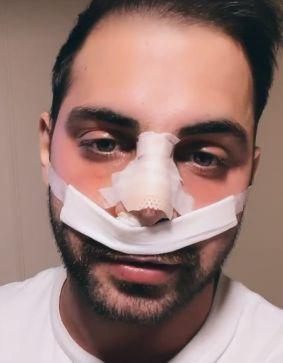 ¡Un famoso lo golpeó! Grego Rossello sufrió un terrible accidente y fue operado de urgencia