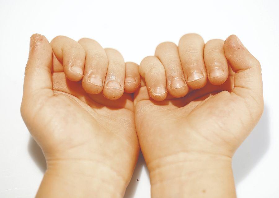 ROSÁCEA: El estrés y la ansiedad son conocidos factores gatillantes de esta enfermedad, que a veces afecta las relaciones sociales y laborales.
