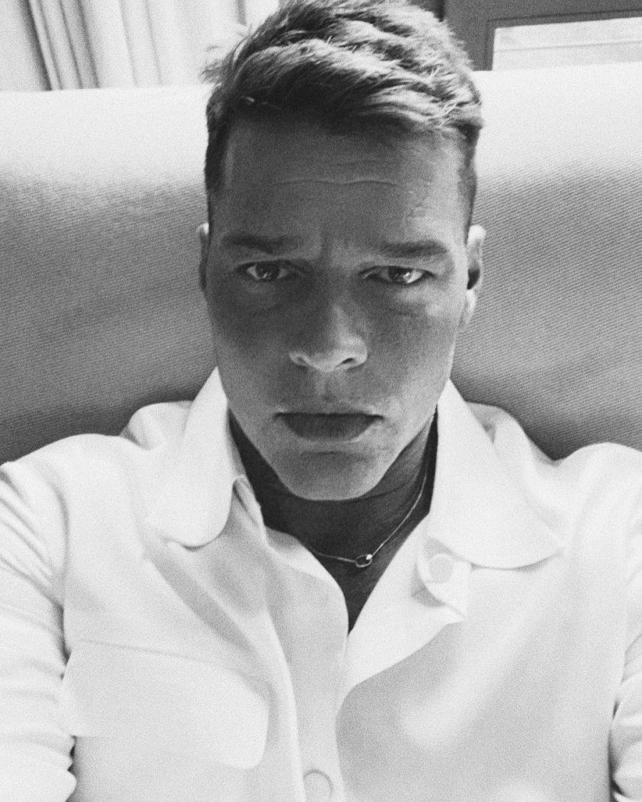 El antes y después de Ricky Martin: qué cirugías se hizo el cantante