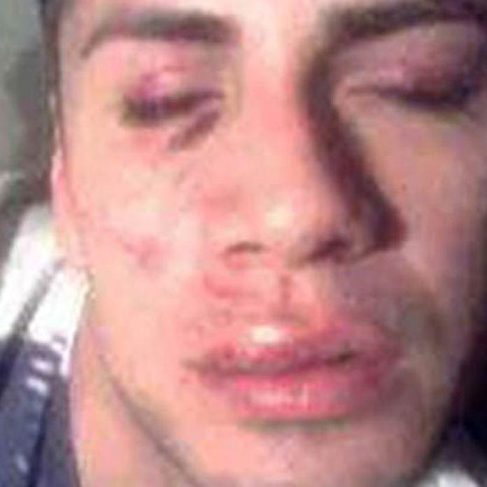 Le deformaron la cara a un joven por ser gay | Perfil.com