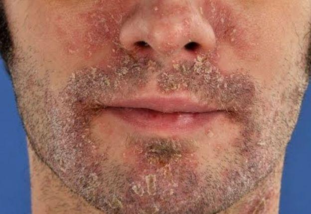 Los médicos sobre el tratamiento de la psoriasis por la sosa
