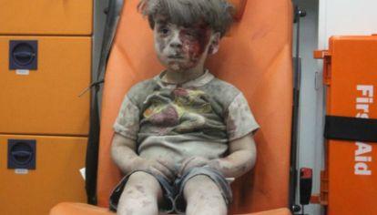 Después de la muerte de Aylan, la imagen de Omran (foto), conmovió al mundo.