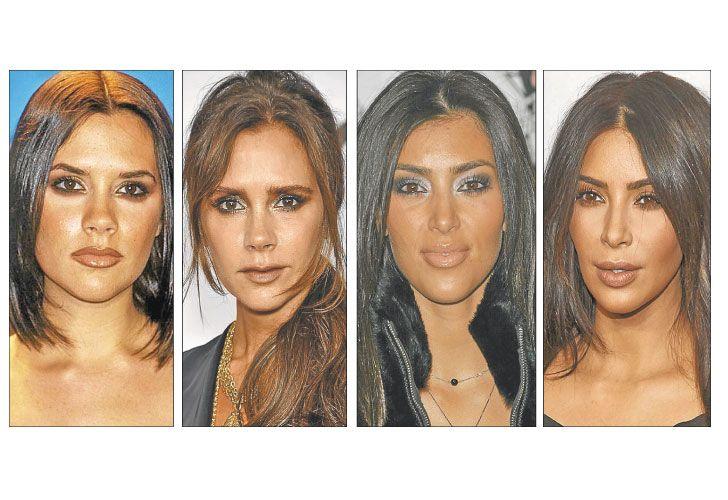 Cambios. Victoria Beckham, Kardashian e Ivanka Trump; algunas de las famosas que recurrieron a la cirugía de cachetes para tener un rostro angular. La operación no deja cicatrices visibles.