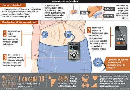 diabetes páncreas tipo i no funciona