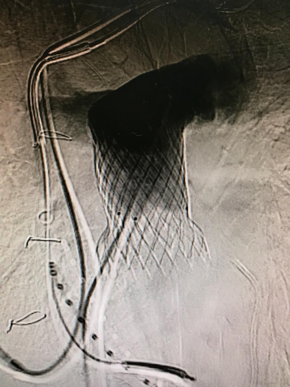 valvula-pulmonar-2