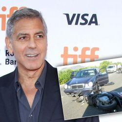 george-clooney-motorcycle-accident-photos