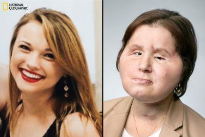Trasplante total de cara más joven de EE.UU.