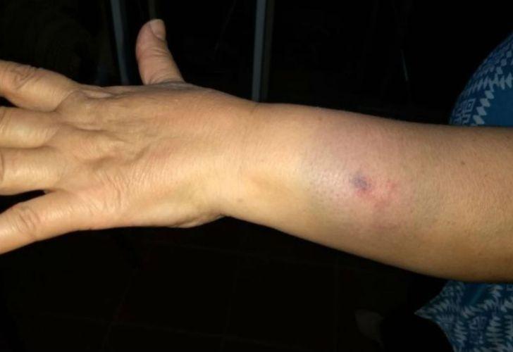 agresion medica mendoza g 11082018