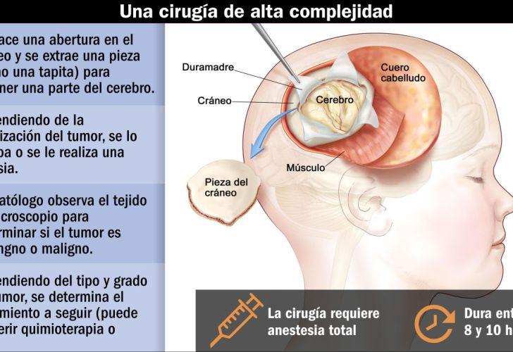 Tumor cerebral benigno tratamiento