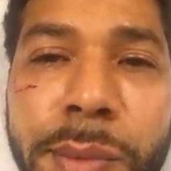 El actor fue atacado en plena calle.