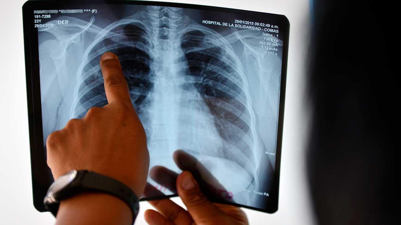 Tuberculosis, enfermedad infectocontagiosa.