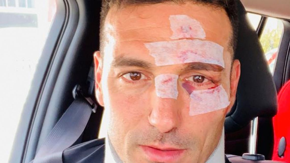 Lionel Scaloni shared this picture on Twitter after his accident.