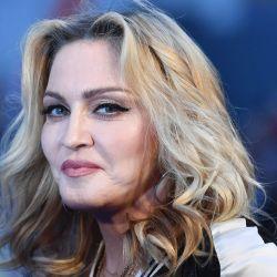 La diosa del pop se realizó varias intervenciones estéticas.