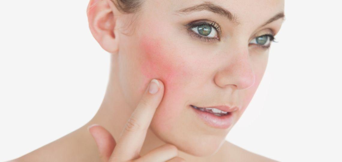 10 consejos para controlar la piel con rosácea