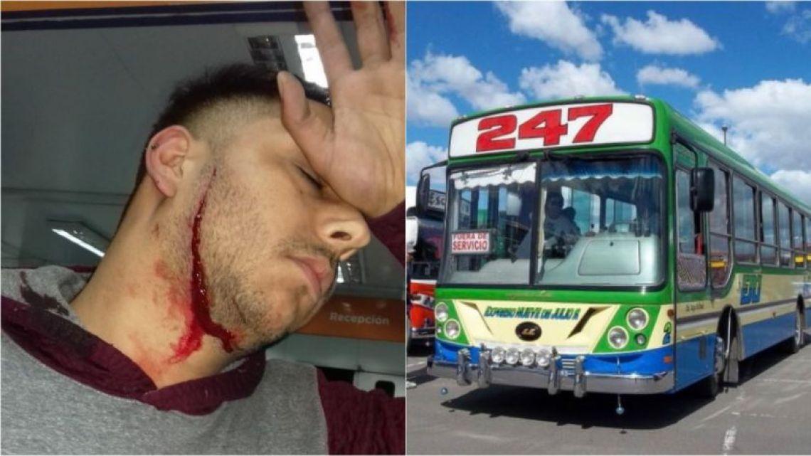 Bus driver attached in Lomas de Zamora